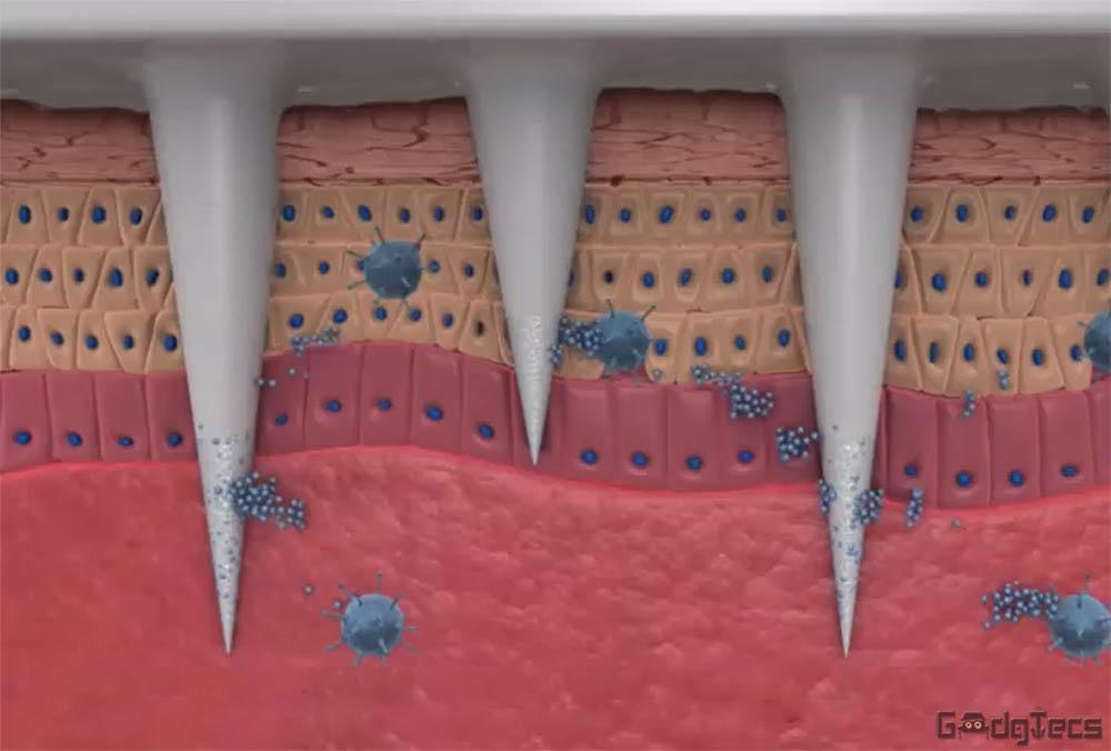 Микроиглы для безболезненных инъекций и забора крови